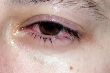 结膜炎用什么眼药水(治疗结膜炎的方法)