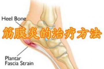 筋膜炎的症状及治疗
