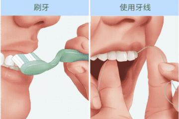 如何预防牙龈炎?